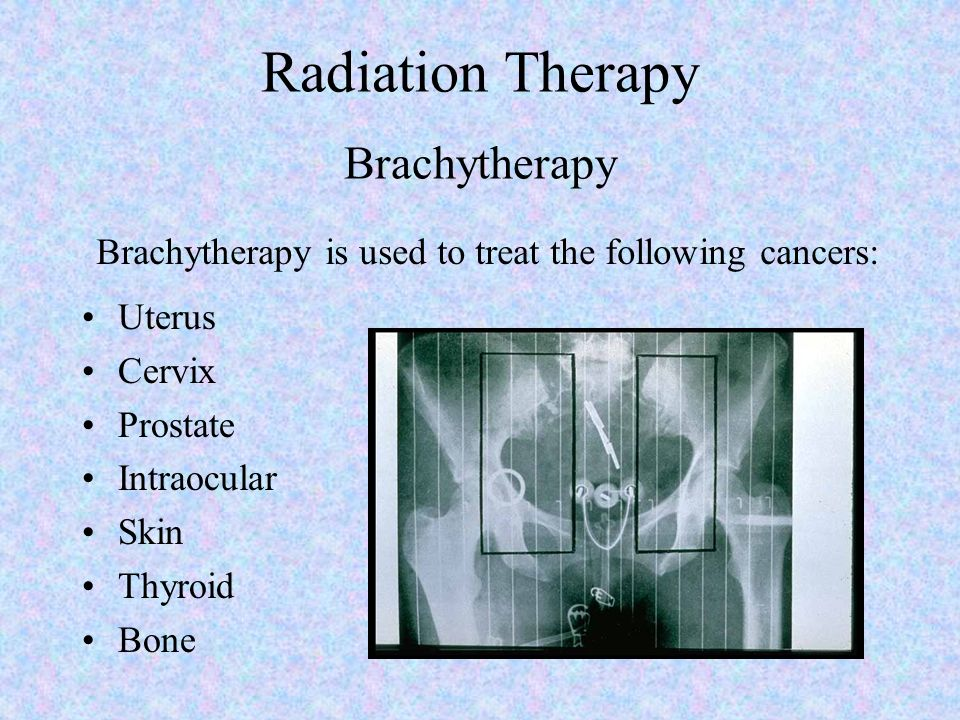 Radiation Therapy Brachytherapy