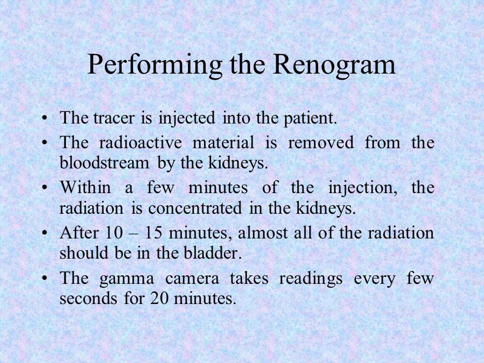 Performing the Renogram