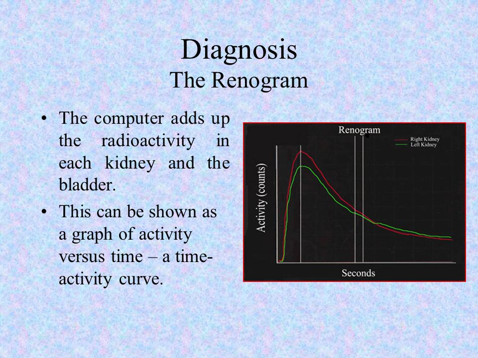 Diagnosis The Renogram