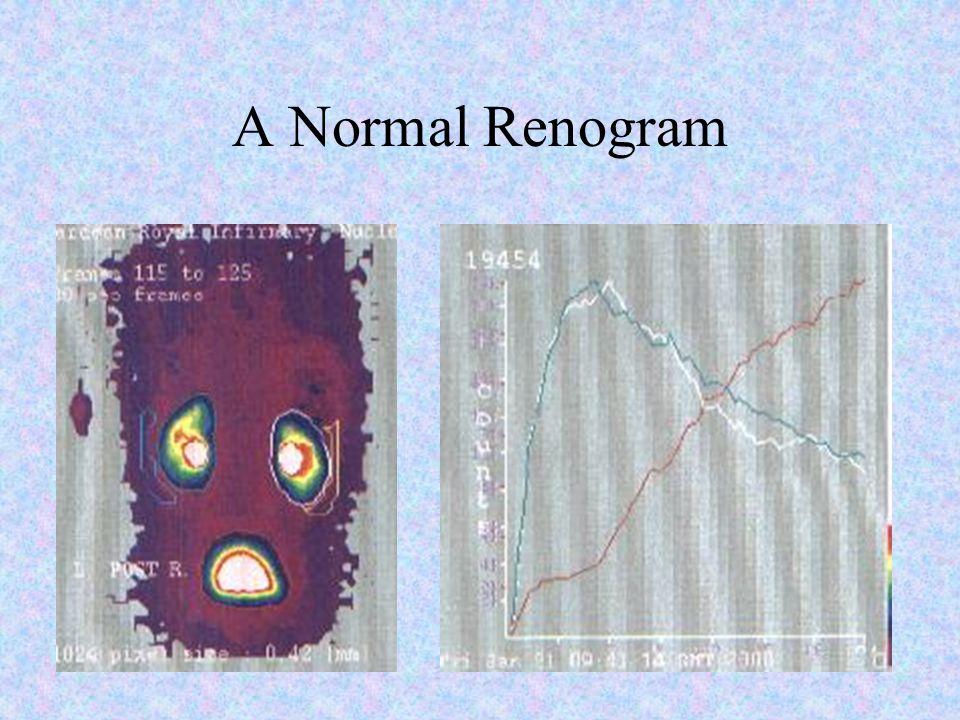 A Normal Renogram