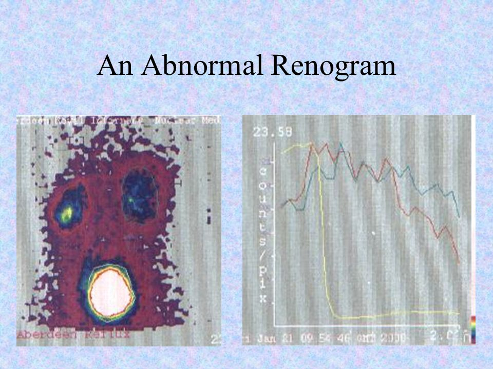 An Abnormal Renogram