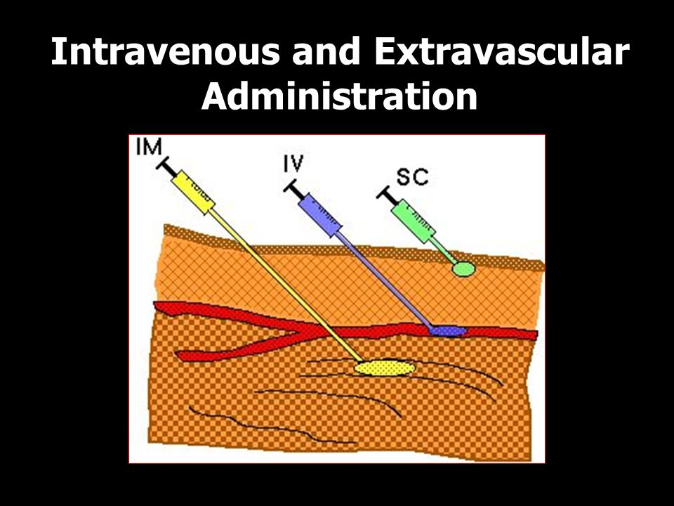 Intravenous and Extravascular Administration