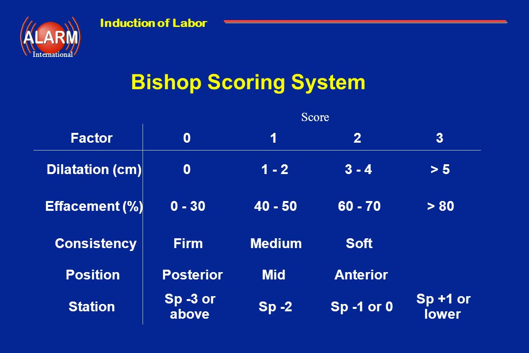 Bishop Scoring System Factor 1 2 3 Dilatation (cm) 1 - 2 3 - 4 > 5