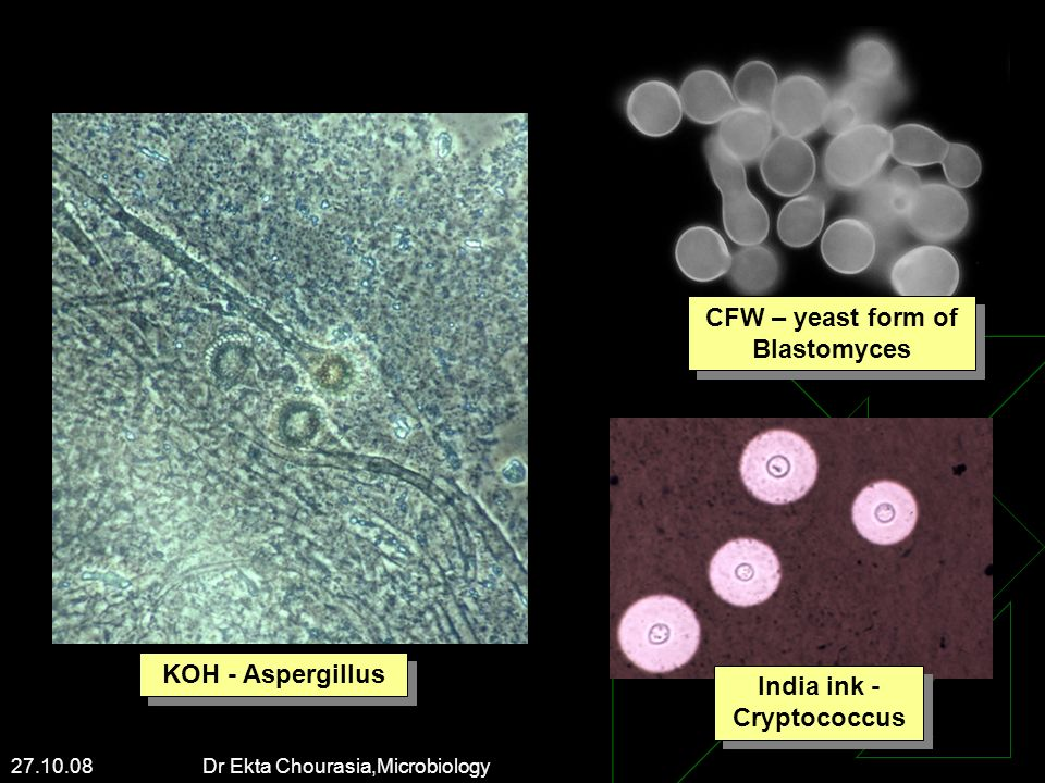CFW – yeast form of Blastomyces India ink - Cryptococcus