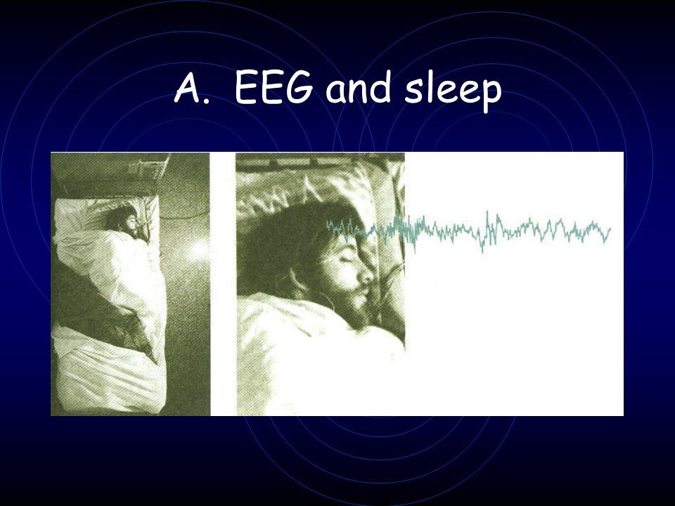 EEG and sleep