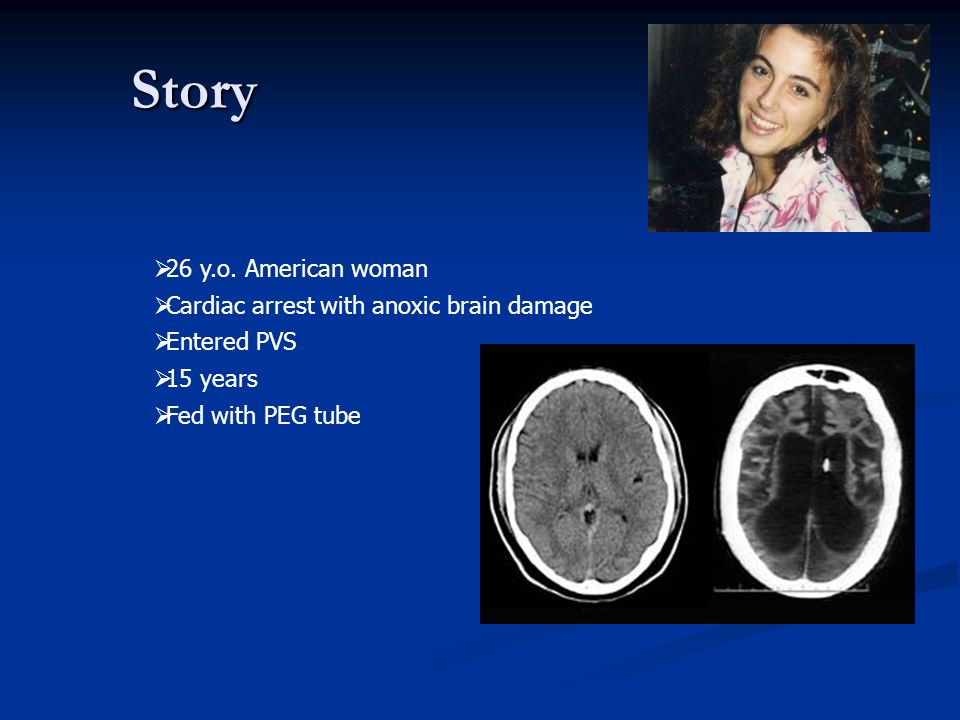 Story 26 y.o. American woman Cardiac arrest with anoxic brain damage