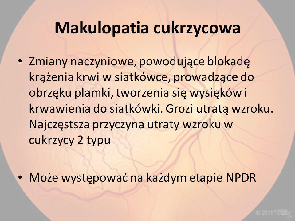 Makulopatia cukrzycowa