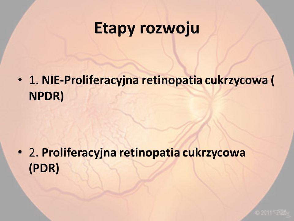 Etapy rozwoju 1. NIE-Proliferacyjna retinopatia cukrzycowa ( NPDR)