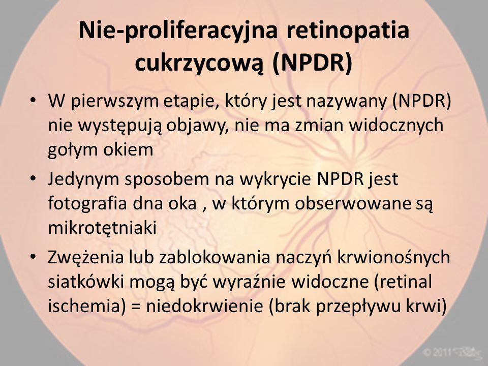 Nie-proliferacyjna retinopatia cukrzycową (NPDR)