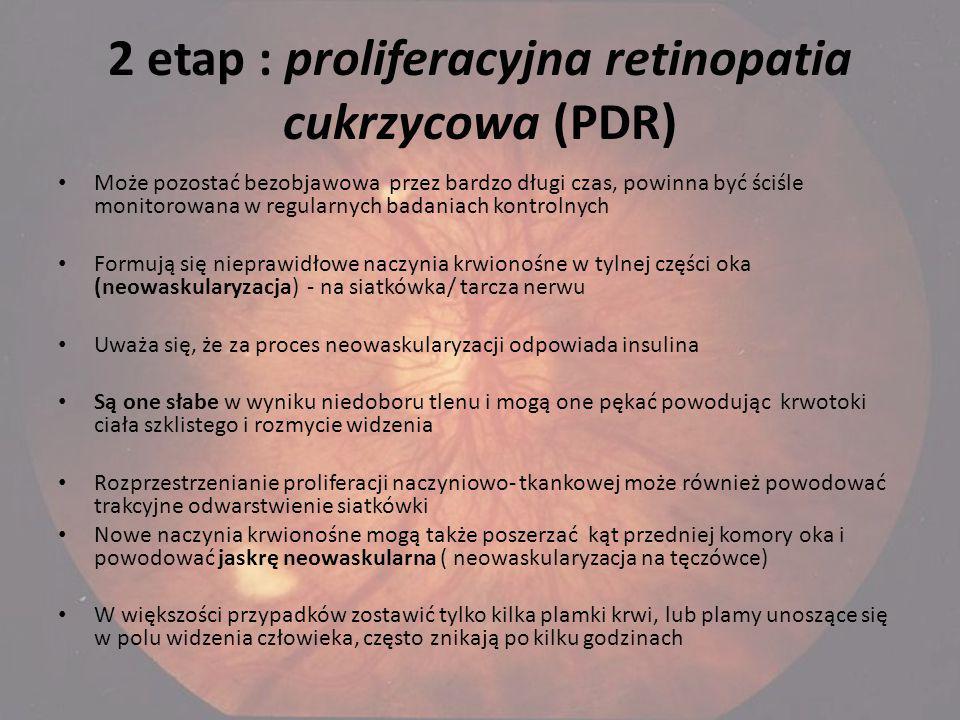 2 etap : proliferacyjna retinopatia cukrzycowa (PDR)