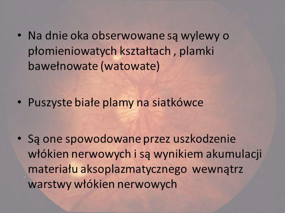 Na dnie oka obserwowane są wylewy o płomieniowatych kształtach , plamki bawełnowate (watowate)