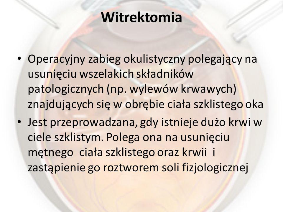 Witrektomia