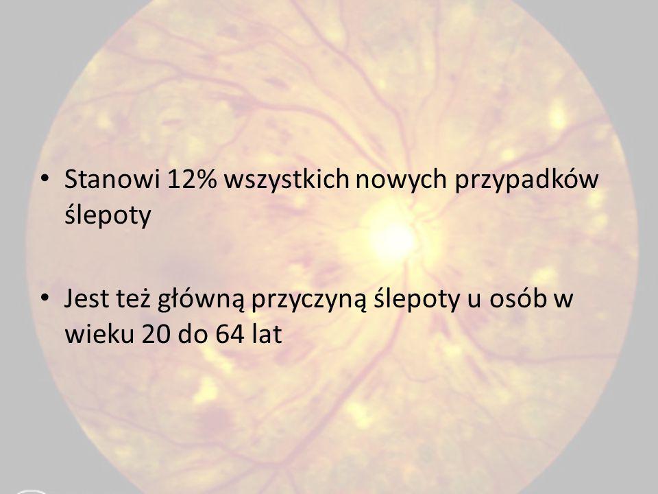 Stanowi 12% wszystkich nowych przypadków ślepoty