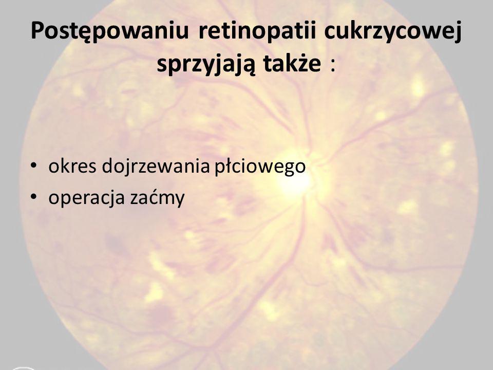 Postępowaniu retinopatii cukrzycowej sprzyjają także :