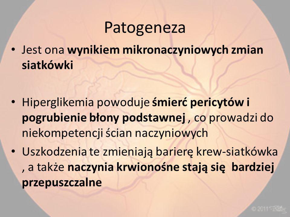 Patogeneza Jest ona wynikiem mikronaczyniowych zmian siatkówki