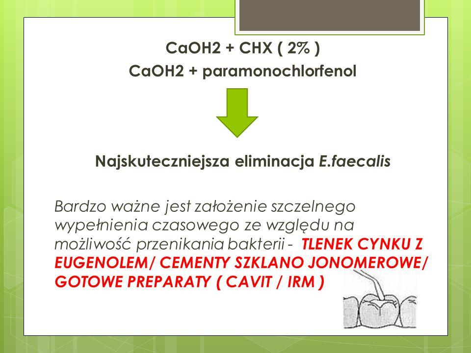 CaOH2 + CHX ( 2% ) CaOH2 + paramonochlorfenol Najskuteczniejsza eliminacja E.faecalis Bardzo ważne jest założenie szczelnego wypełnienia czasowego ze względu na możliwość przenikania bakterii - TLENEK CYNKU Z EUGENOLEM/ CEMENTY SZKLANO JONOMEROWE/ GOTOWE PREPARATY ( CAVIT / IRM )