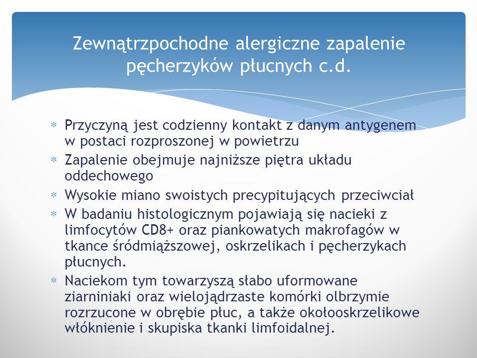 Zewnątrzpochodne alergiczne zapalenie pęcherzyków płucnych c.d.