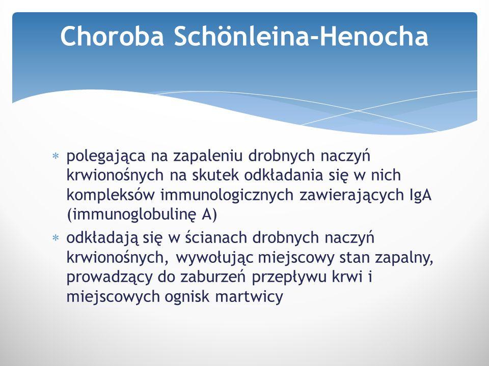 Choroba Schönleina-Henocha