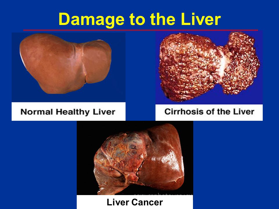 Damage to the Liver Liver Cancer