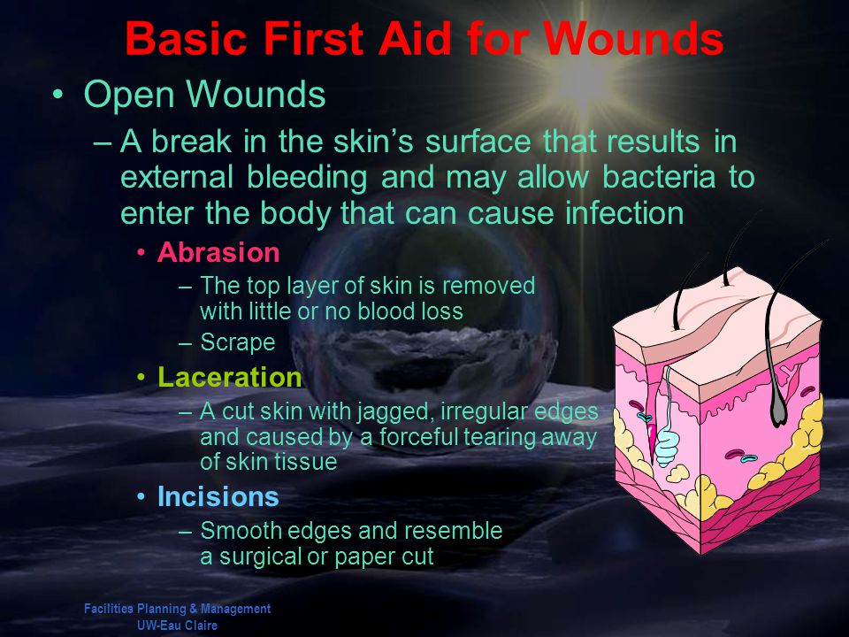 Basic First Aid for Wounds