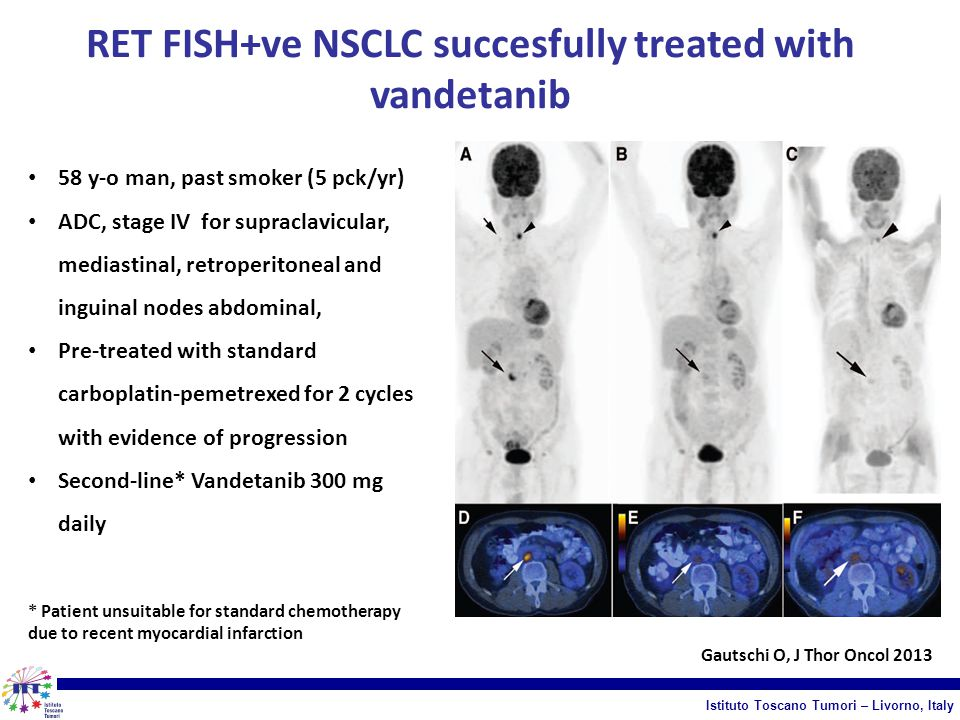 RET FISH+ve NSCLC succesfully treated with vandetanib