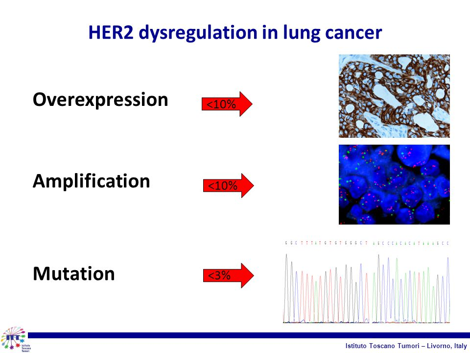 HER2 dysregulation in lung cancer