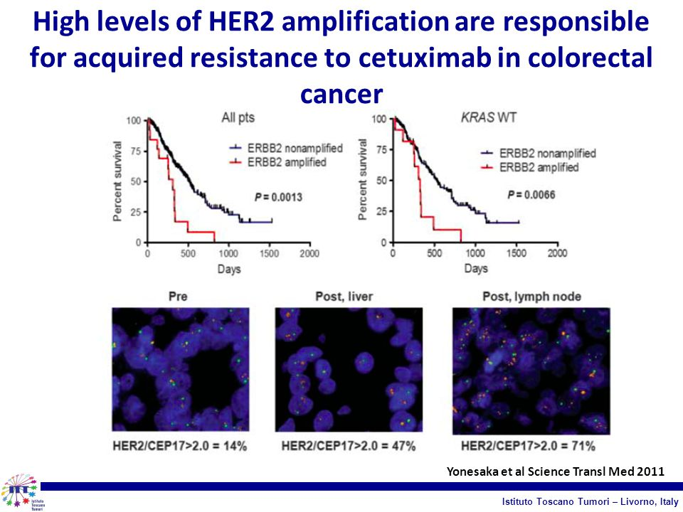 High levels of HER2 amplification are responsible for acquired resistance to cetuximab in colorectal cancer