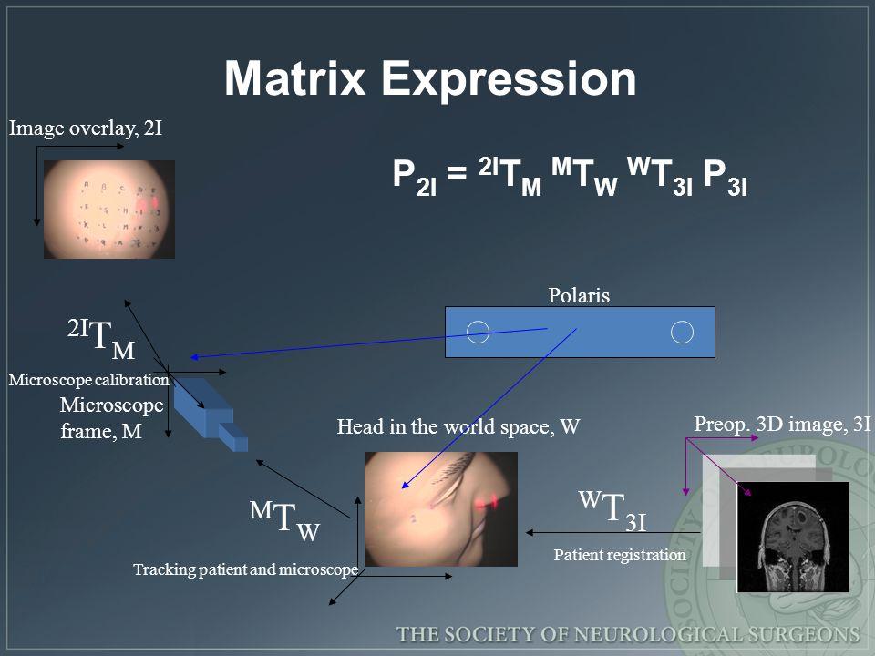 Matrix Expression 2ITM WT3I MTW P2I = 2ITM MTW WT3I P3I