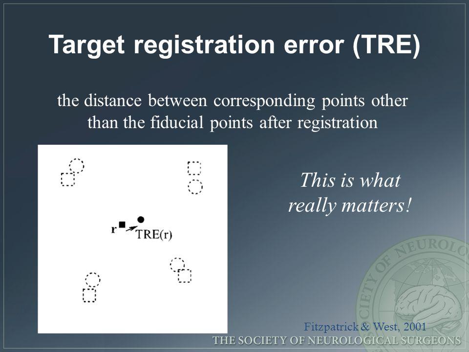 Target registration error (TRE)
