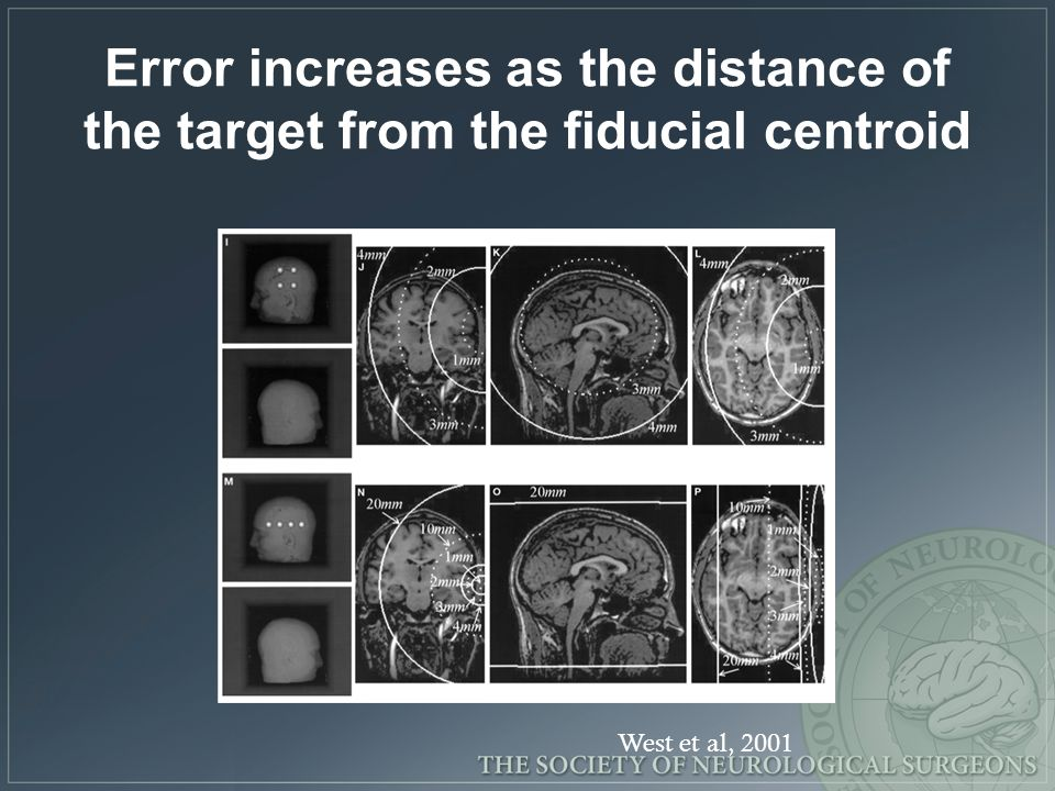 Error increases as the distance of the target from the fiducial centroid