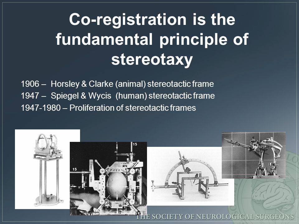 Co-registration is the fundamental principle of stereotaxy