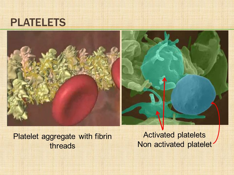 Platelets Activated platelets Platelet aggregate with fibrin threads