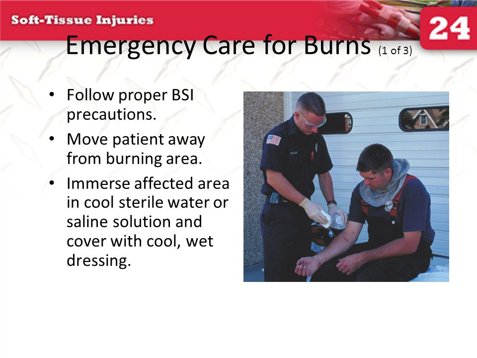 Emergency Care for Burns (1 of 3)