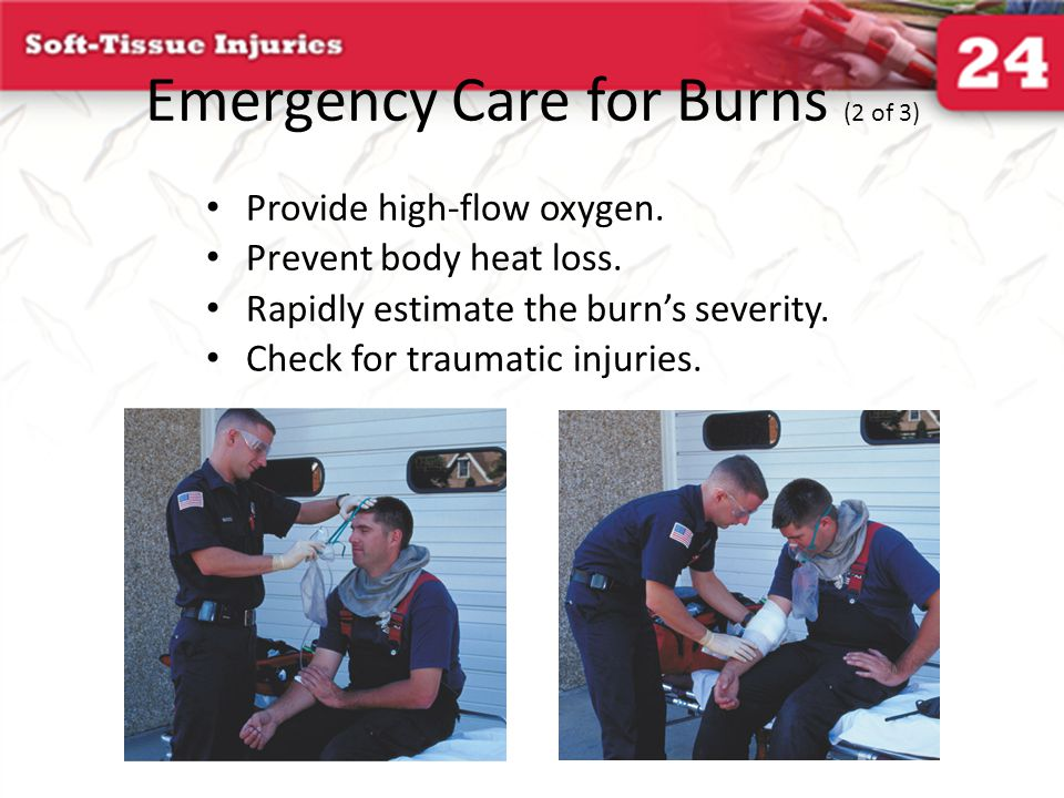 Emergency Care for Burns (2 of 3)