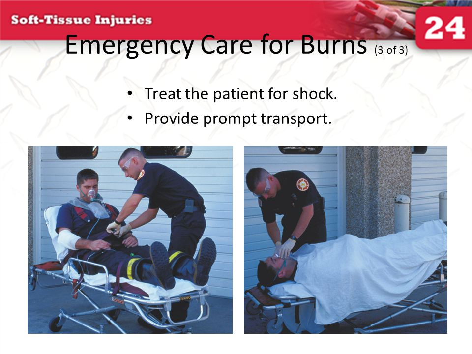 Emergency Care for Burns (3 of 3)