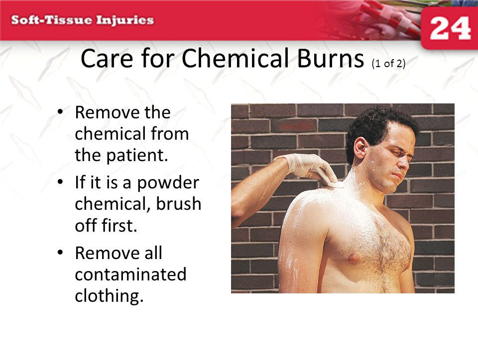Care for Chemical Burns (1 of 2)