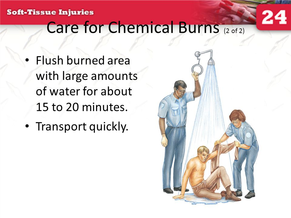 Care for Chemical Burns (2 of 2)