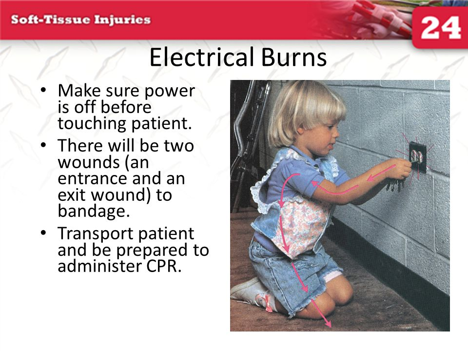 Electrical Burns Make sure power is off before touching patient.