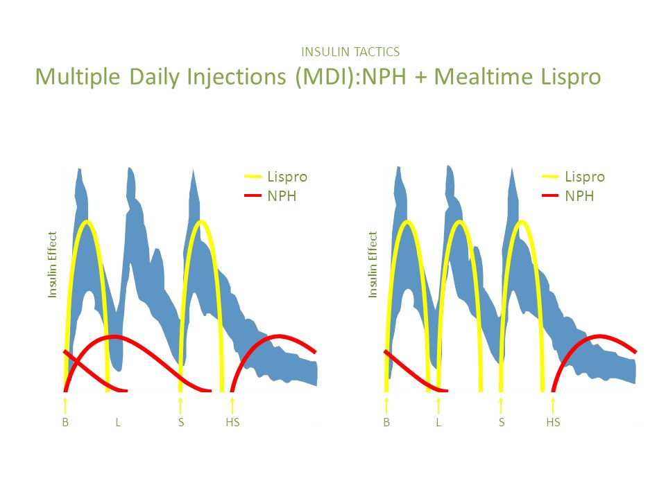 INSULIN TACTICS Multiple Daily Injections (MDI):NPH + Mealtime Lispro