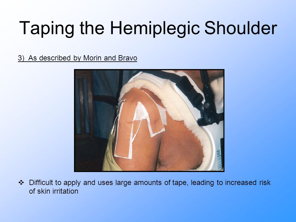 Taping the Hemiplegic Shoulder