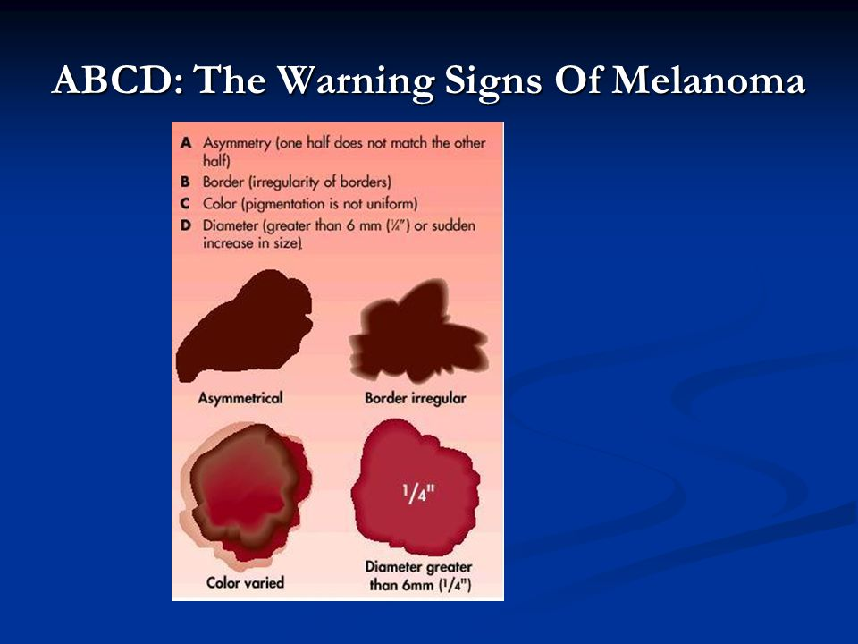 ABCD: The Warning Signs Of Melanoma