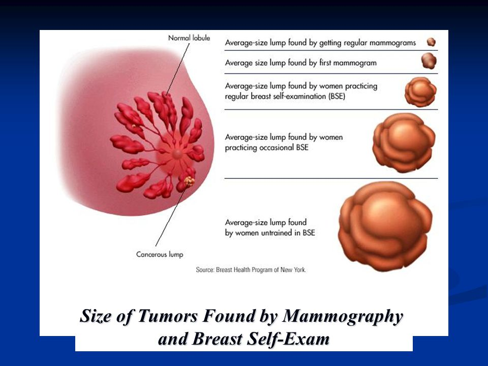 Size of Tumors Found by Mammography
