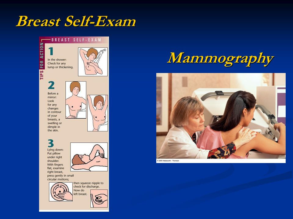 Breast Self-Exam Mammography Figure 15.5