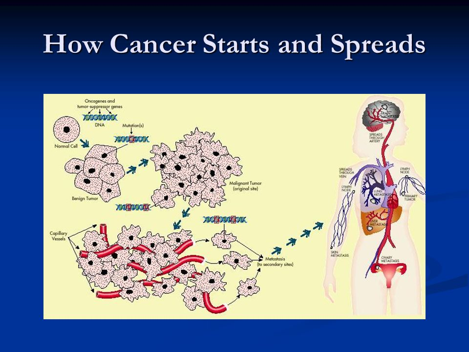 How Cancer Starts and Spreads