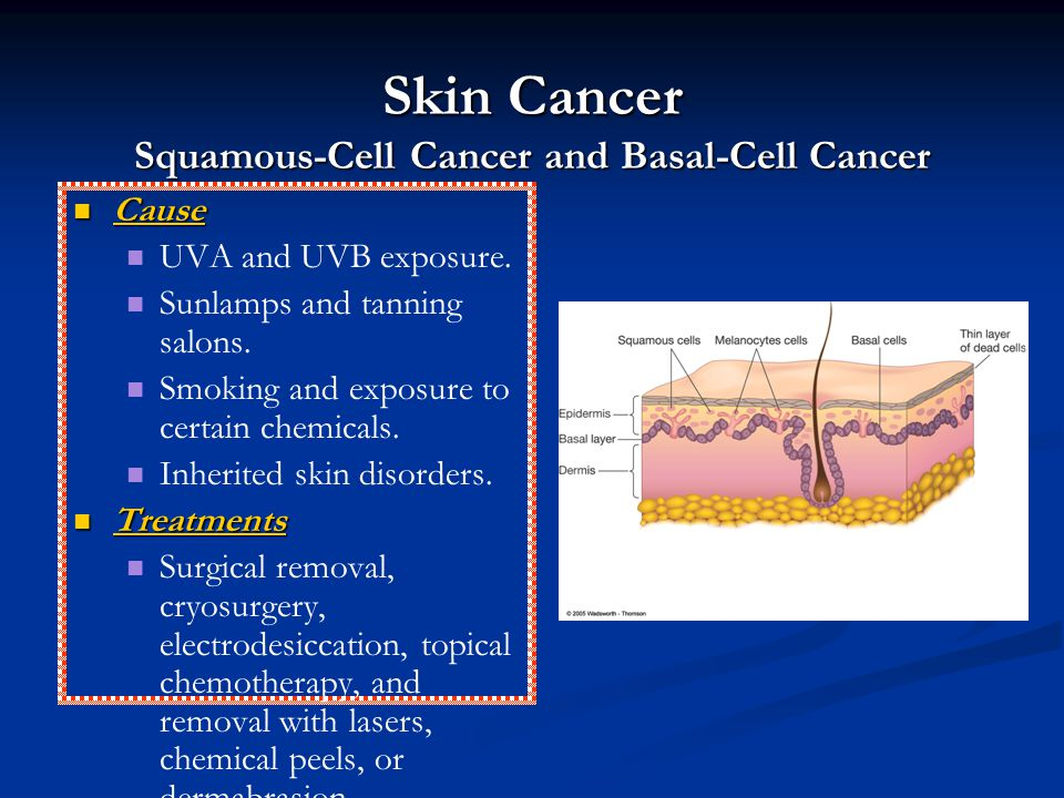 Skin Cancer Squamous-Cell Cancer and Basal-Cell Cancer