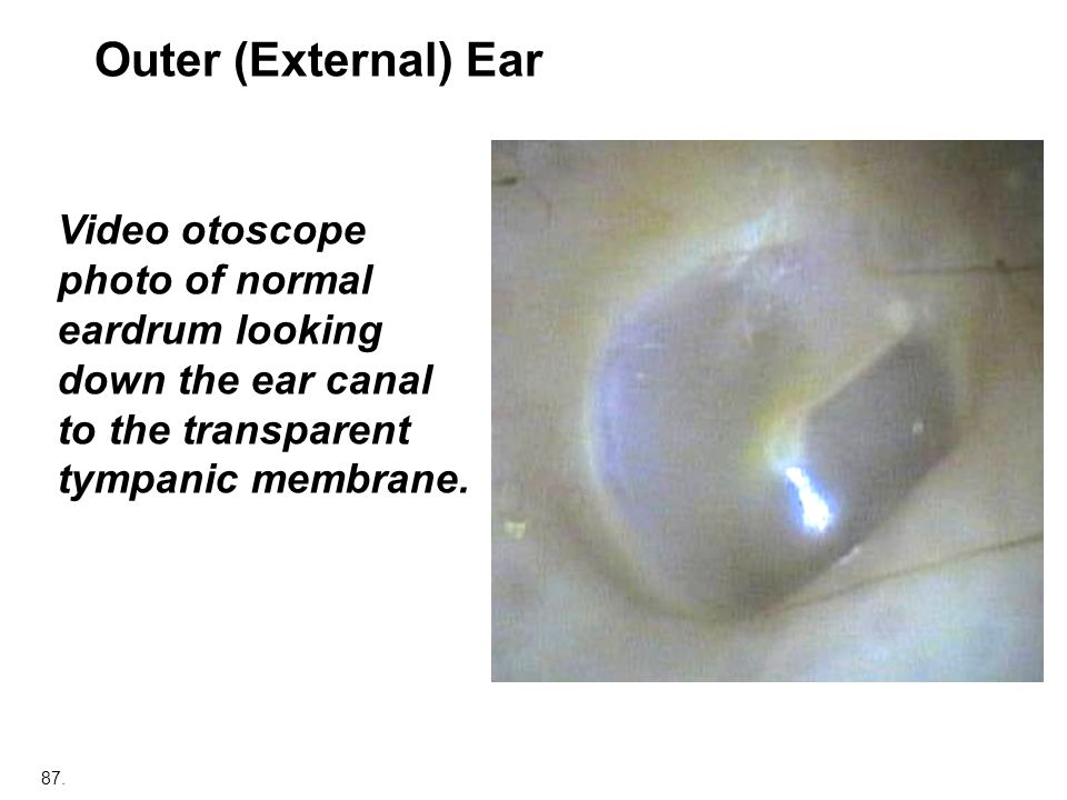 Outer (External) Ear Video otoscope photo of normal eardrum looking down the ear canal to the transparent tympanic membrane.