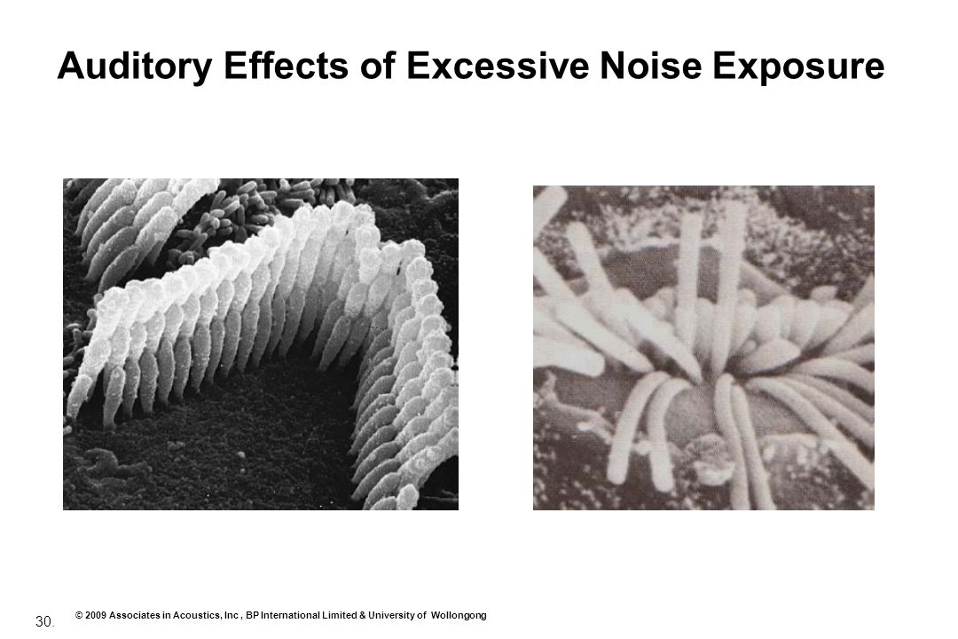Auditory Effects of Excessive Noise Exposure