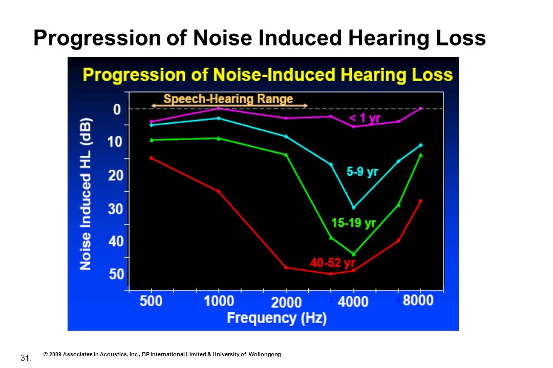 Progression of Noise Induced Hearing Loss