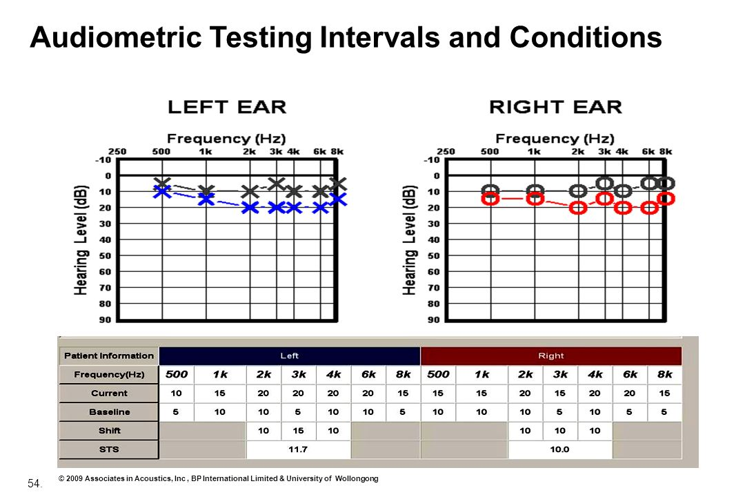 Audiometric Testing Intervals and Conditions
