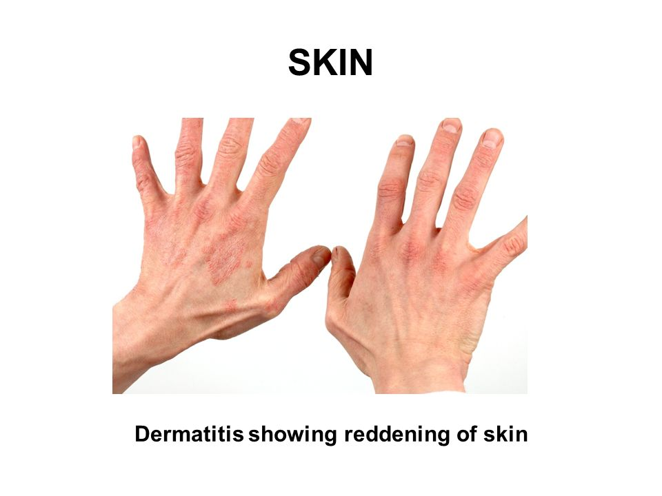 SKIN Source: HSE Dermatitis showing reddening of skin